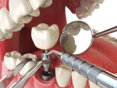 Dental-Implants-1-e1519105719474